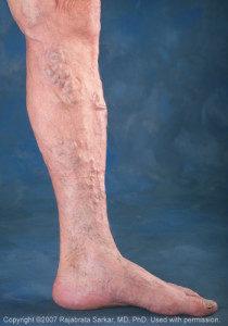 varicose-veins-Image-210x300