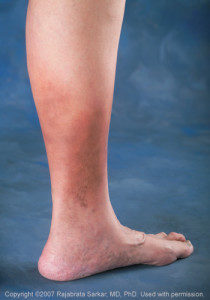 leg-skin-changes-Image-210x300