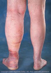 leg_swelling