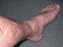 male varicose vein removal